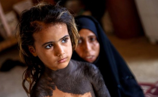 Haura, a four-year-old Iraqi girl with a rare congenital skin condition that covers much of her upper body in black marks and hair, stands in front of her mother in the family home in Wahed Haziran, Diwaniya province, on April 17, 2018. Photo by Haidar Hamdani. (AFP Photo/Haidar HAMDANI)